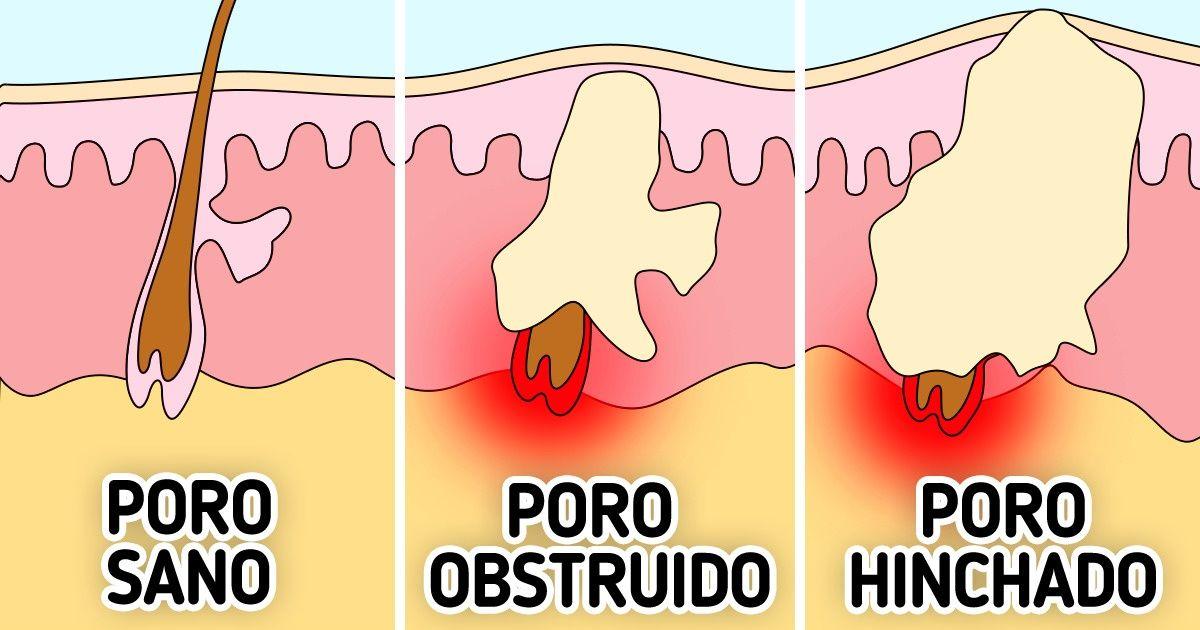 Cómo deshacerse del acné de la barbilla