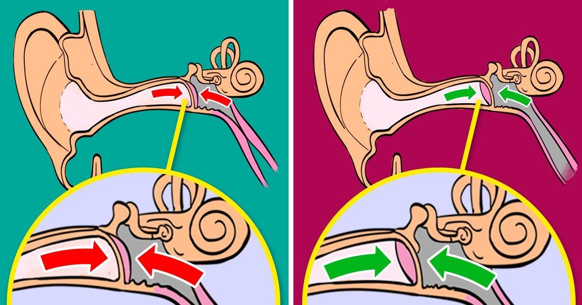 Cómo evitar el dolor de oído durante un vuelo
