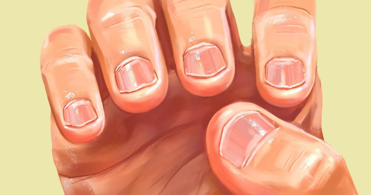 12 Consejos para dejar de comerse las uñas