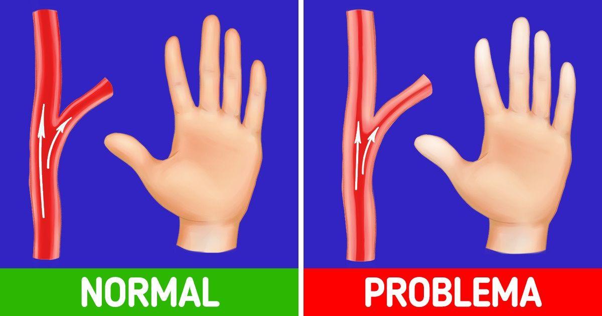 Cómo calentar tus manos cuando están frías